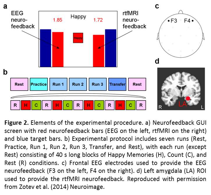 Integration of concurrent real-time fMRI and EEG data: Figure 2