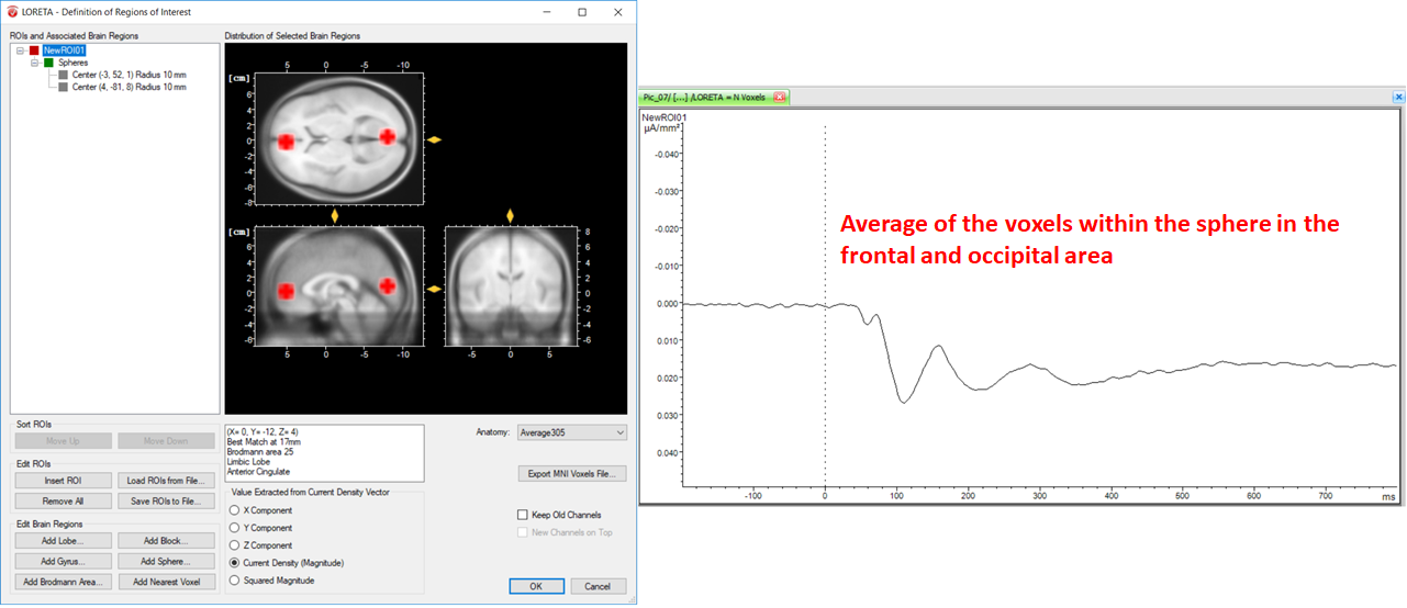 Fig. 6: Effect of including different structures of the brain within a single ROI along with its corresponding source signal depicted in one LORETA channel (NewROI01).